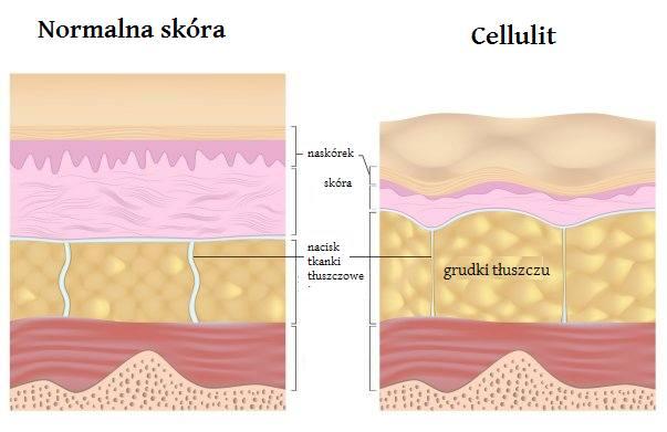 jak powstaje cellulit