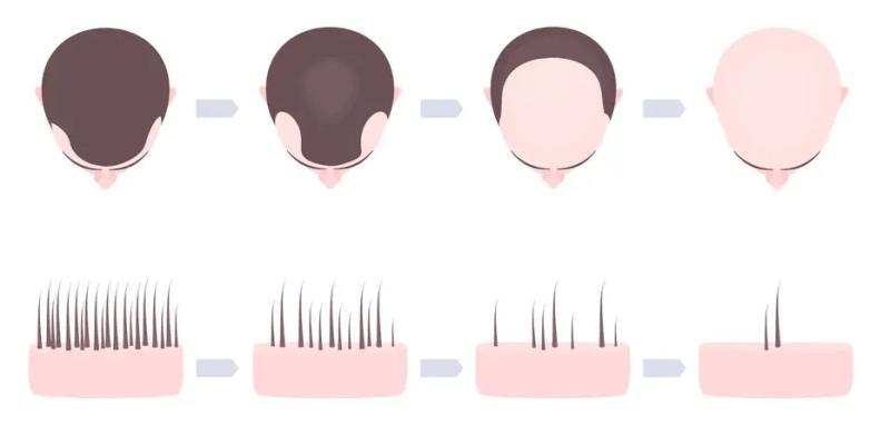 etapy łysienia androgenowego